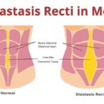 Diastasis Recti In Men | Symptoms | Causes | Exercise