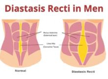 Diastasis Recti In Men
