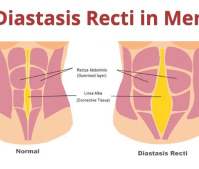 Diastasis Recti In Men