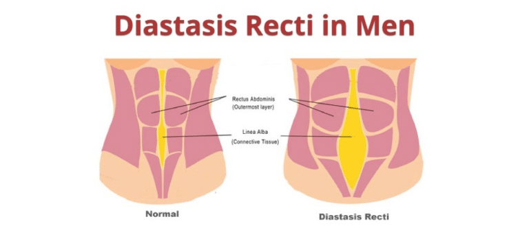Diastasis Recti In Men | Symptoms | Causes | Exercise