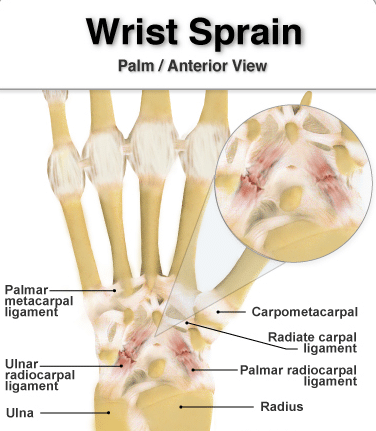 Sprained Wrist Symptoms and Treatments
