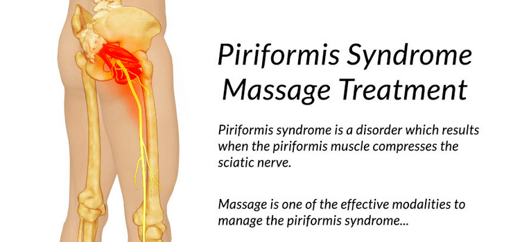 What Is Piriformis Syndrome? Example