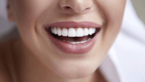 Things to Know About Dental Crowns
