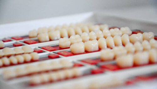 What To Consider Before Deciding On Getting Porcelain Veneers